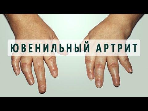 Что такое ювенильный ревматоидный артрит?