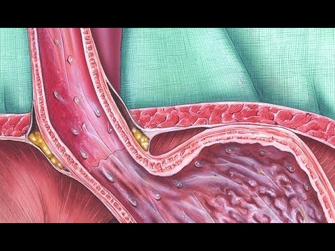 Video Barrett's Esophagus Screening