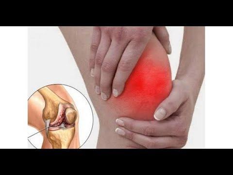 Артролекс крем для суставов отзывы цена