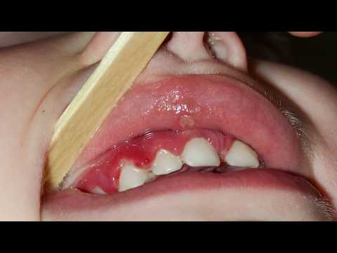How do I fix a canker sore?