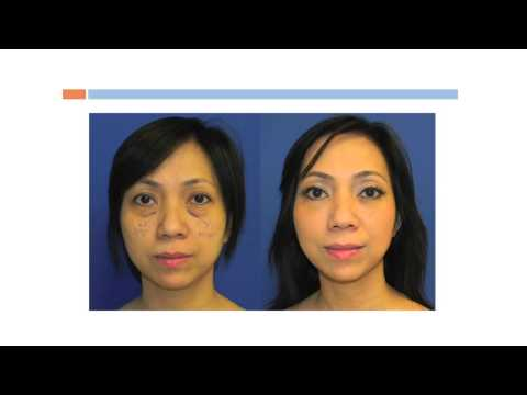 Upper and Lower Eyelid Lift, Blepharoplasty, Washingtonian Plastic Surgery Dr. Navin Singh