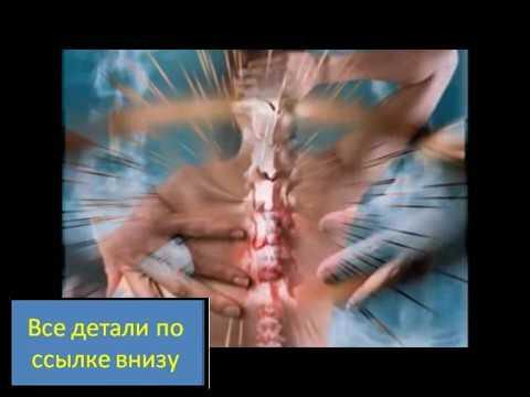 Лечение посттравматического артроза коленного сустава