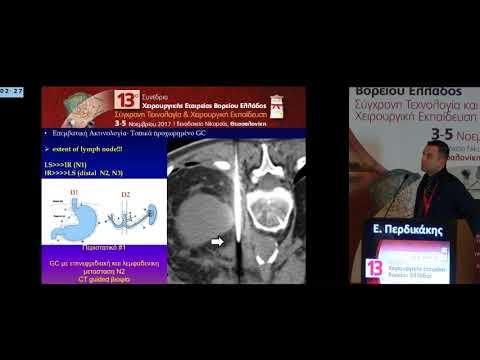 Περδικάκης Ε - Για τη σταδιοποίηση του εκτεταμένου καρκίνου του στομάχου Λαπαροσκοπική χειρουργική