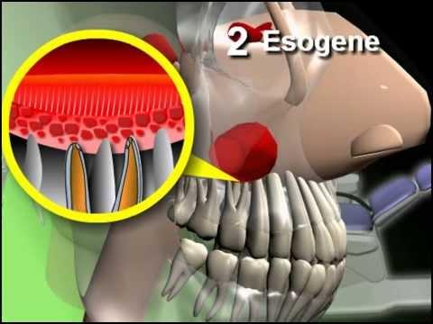 Come rimuovere linfiammazione di un giunto nei rimedi popolari gamba