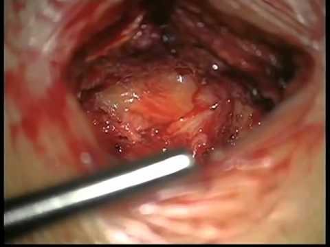 Симптомы рака позвоночника грудного отдела позвоночника