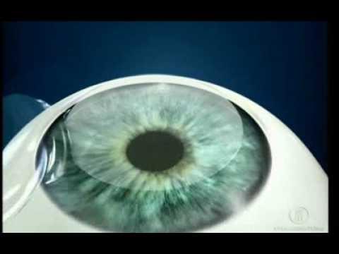Pierderea persistentă a eructației migrenei vederii