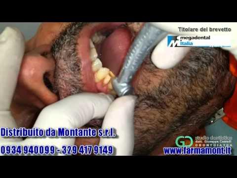 Dispositivi per il trattamento di prostatite, rettale