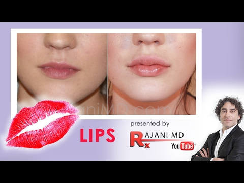 Lip Lips Juvederm Fuller Natural Beauty Video
