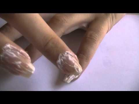 Como puede ser mucho tiempo el hongo de las uñas