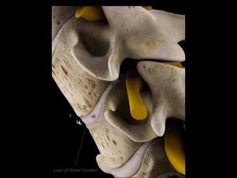Una enfermedad de las articulaciones del hombro en niños