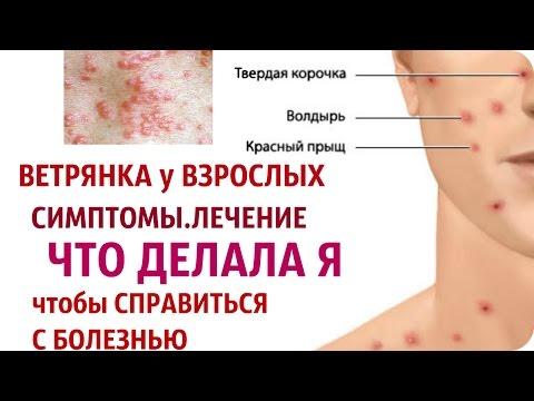 Вирусные гепатиты а и в клиника лечение