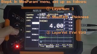 Συσκευή Ελέγχου με Υπερήχους SMARTOR SIUI- Λειτουργία TG Multi Mode