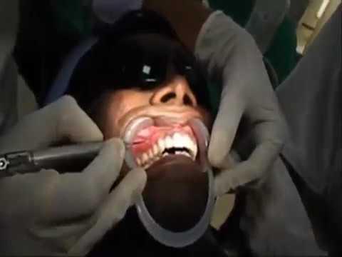 LASER Depigmentation Of Gum Dr Mayur S Khairnar - [www.MangaScan.Live]