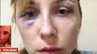 Ужас И снова  этот Египет. Араб избил туристку из России.В Египте в пятизвездочном отеле .