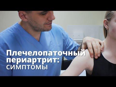 Плечелопаточный периартрит симптомы