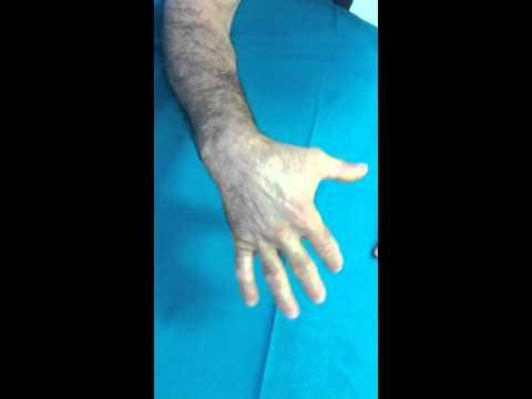 Articolazioni Psicosomatica delle mani