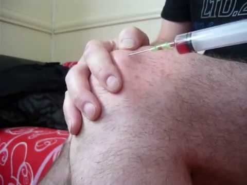 Ból w mięśniach STI