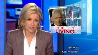 Alex Trebek, Jeopardy host, Recovers From Mild Heart Attack (ABCNews)