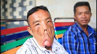 Bất ngờ kết quả chàng trai mặt quỷ sau khi gặp bác sĩ Tú Dung   Phong Bụi