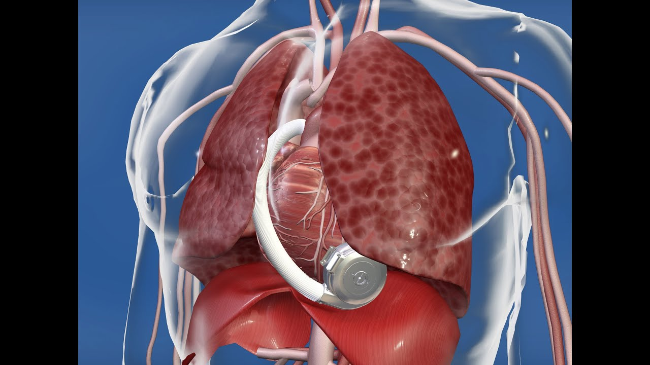 Your Health: Stanford's Dipanjan Banerjee, MD, Discusses Left Ventricular Assist Device (LVAD)