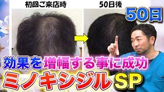 【ミノキシジル】発毛剤の効果の高め方