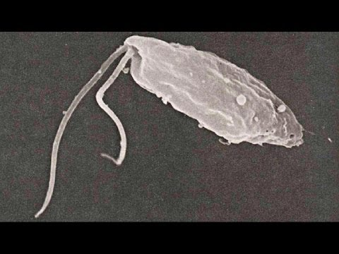Kazan sinubok para sa mga parasito