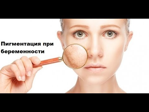 Какая маска для лица убирает пигментные пятна
