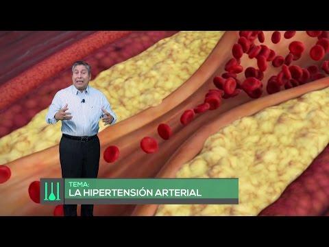 Fármacos para la hipertensión en la etapa inicial