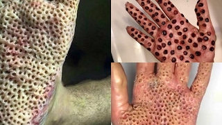 Video Gallery Trypophobia Reference Website