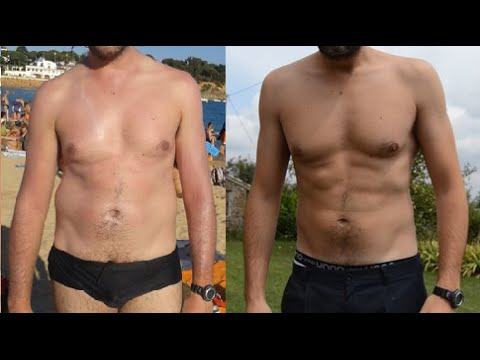 Loperazione di stomaco per perdere il peso