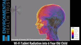 Wi-Fi Tablet Radiation into 6 Year old Child Brain