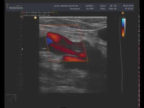 Окклюзирующий тромбоз суральной вены с явлениями организации и пристеночной реканализации
