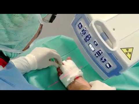 Ernia intervertebrale lombare della esercita per il trattamento di