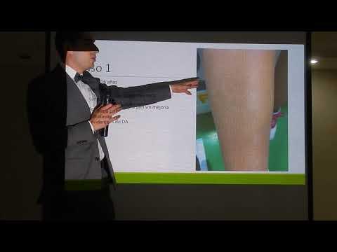 Povolzhsky el centro de la psoriasis y vitiligo kazan