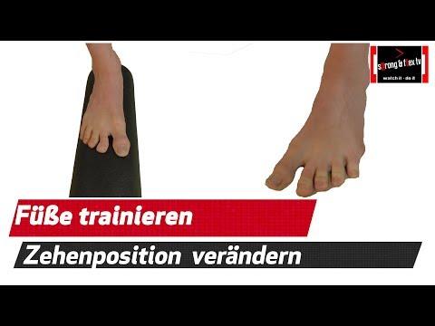 Die Operation bei der Valgusdeformation des Kniegelenkes