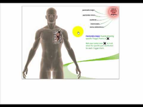 Filmy treningowe syndrome piriformis