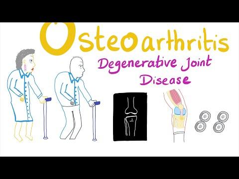 Mi történik a rheumatoid arthritisben szenvedő ízületekkel?