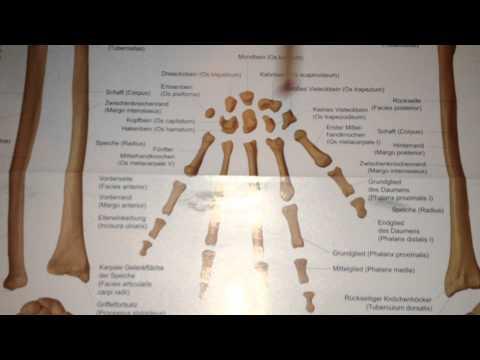Kopfschmerzen von Gebärmutterhalskrebs degenerativer Bandscheiben wie sie zu behandeln