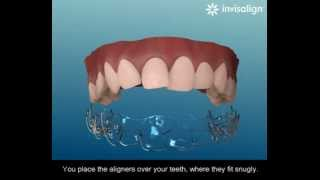 preview picture of video 'How the Invisalign Brace System Works - Jiva Dental | Kingston'
