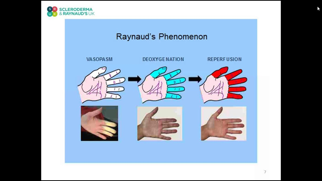 Tonia Moore, Chief Vascular Technician talks about Raynaud's with SRUK