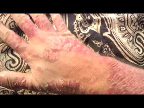 Die Salbe von der Schuppenflechte aus kitaja der Tag-Nacht
