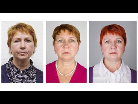 Признаки старения кожи на лице к 30 годам
