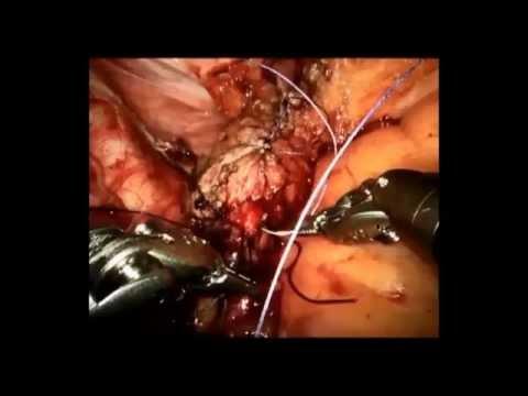 Il trattamento tradizionale di prostatite