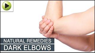Dark Elbows - Natural Ayurvedic Home Remedies