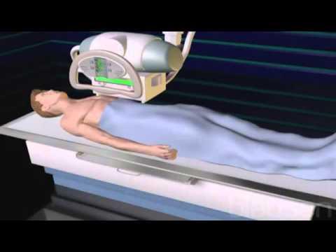 Отзывы о травмах шейного отдела позвоночника