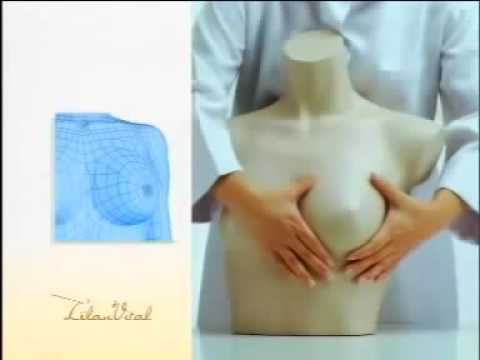 Nagmumuling-tatag breast surgery
