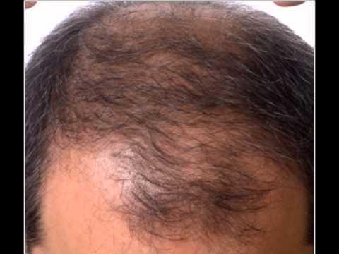 Napura olej włosy