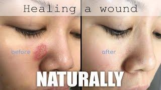 Healing a face wound naturally
