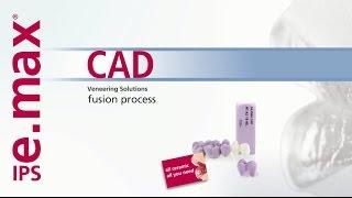 IPS e.max CAD Veneering Solutions – Fusion Process