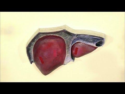 Болезнь рыбы у человека в печени